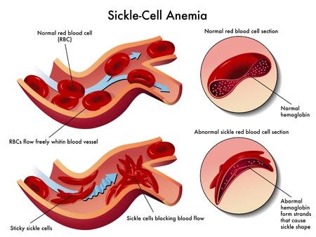 piastrine: l'anemia falciforme Vettoriali