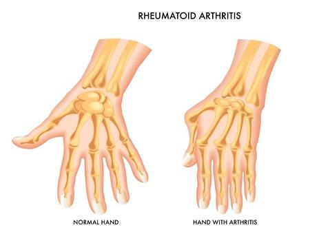 artritis: Artritis Reumatoide Vectores