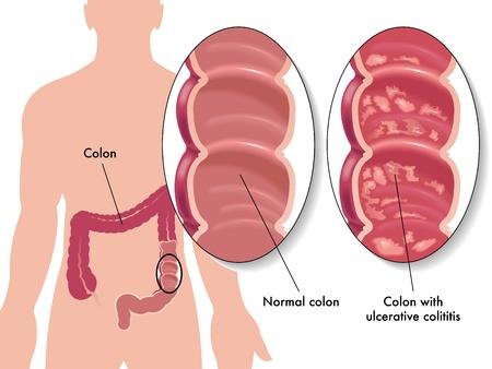 intestino grueso: colitis ulcerosa Vectores