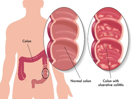 sigmoid colon: ulcerative colitis