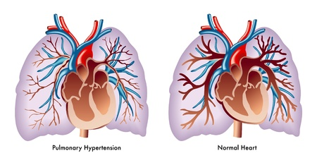 emphysema: Pulmonary hypertension