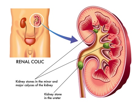 infected: c�lico renal Vectores