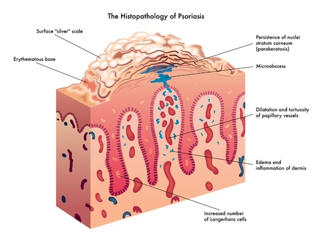 the lesions: psoriasis