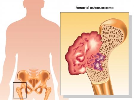 biopsia: osteosarcoma femoral Vectores