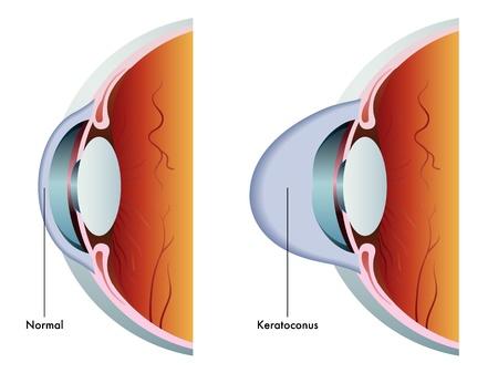 cornea: cheratocono Vettoriali