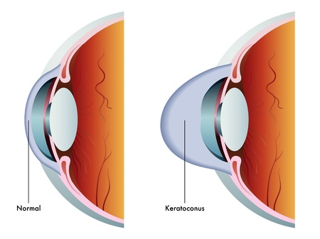 degeneration: keratoconus