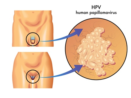 scrotum: el virus del papiloma humano