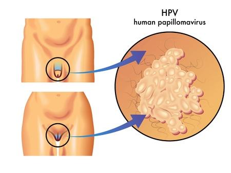 genitali: papillomavirus umano Vettoriali