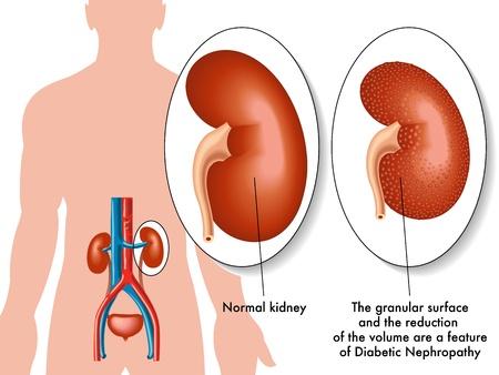 necrosis: diabetic nephropathy