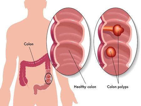 colon cancer: colon polyp Illustration