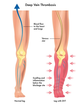 venous: deep vein thrombosis Illustration