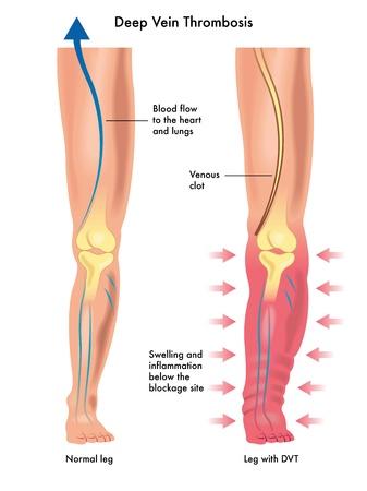 lump: deep vein thrombosis Illustration
