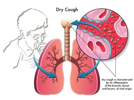 tosiendo: tos seca Vectores