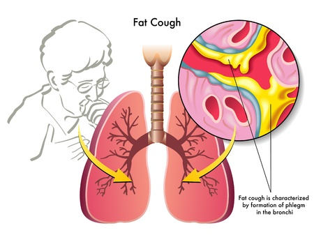 fat cough Stock Vector - 17438438