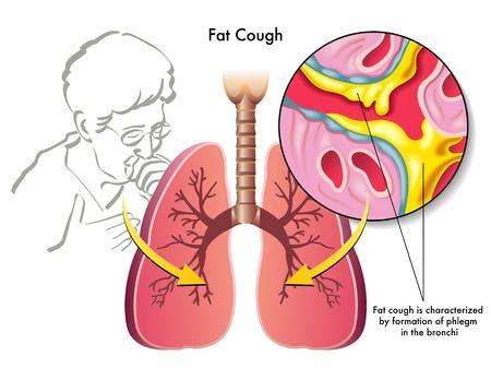 tosiendo: tos grasa
