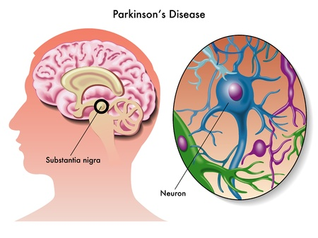 Parkinson s disease Stock Vector - 17438470