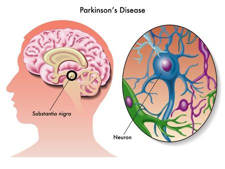 an illness: Parkinson s disease