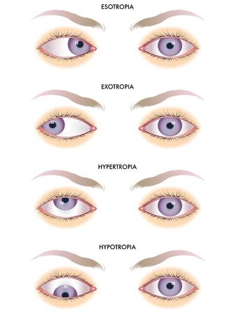 cornea: strabismo Vettoriali