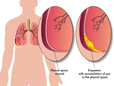 pleural fluid: pleural empyema Illustration