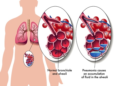 pneumonia Ilustração