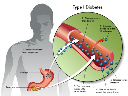 diabetic: type 1 diabetes