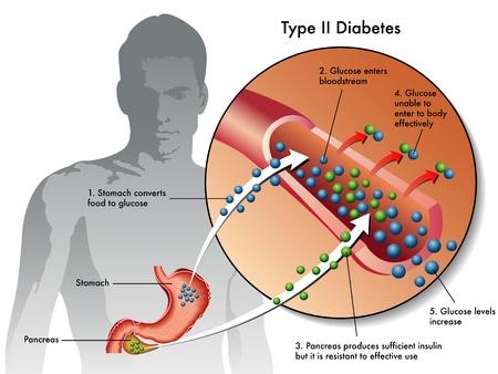trzustka: cukrzycy typu 2 Ilustracja