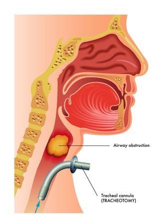 tracheotomy Vettoriali