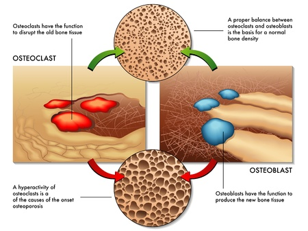 absorption: osteoblast & osteoclast Illustration