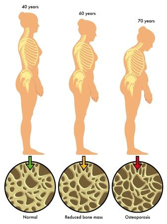 hormonen: osteoporose 3 Stock Illustratie