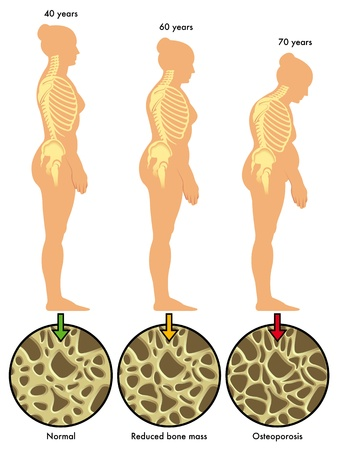 menopause: osteoporosis 3 Illustration