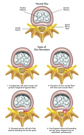 hernia: herniated disc Illustration