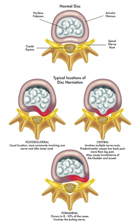 intervertebral: herniated disc Illustration