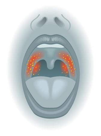 skin infections: dolor de garganta