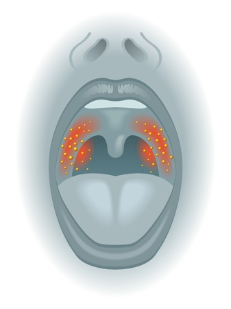 mucosa: sore throat Illustration