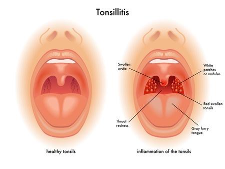 tonsillitis Vector