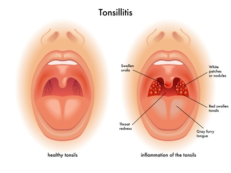 bacterial infection: tonsillitis