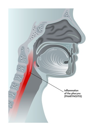 enlarged: faringite Vettoriali