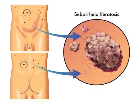 hormonen: seborrheic keratose Stock Illustratie