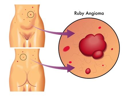 hormonas: Angioma rub� Vectores