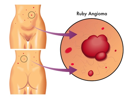 capillaries: ruby angioma