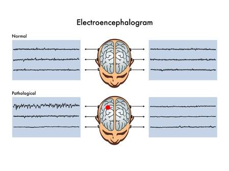 cicla: electroencefalograma Vectores