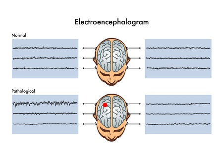 beta cells: electroencephalogram
