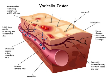 vesicles: varicella zoster virus