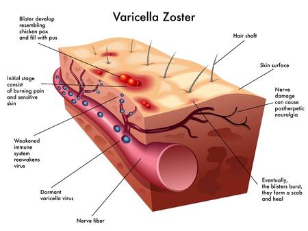 varicela: virus de la varicela zoster Vectores