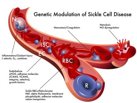 gene: sikkelcelziekte Stock Illustratie