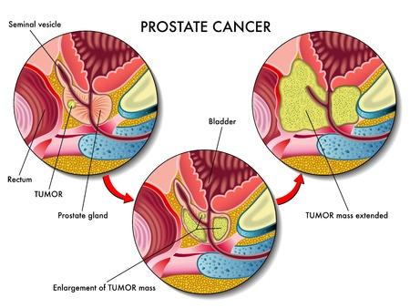 Prostate Cancer Stock Vector - 19560805