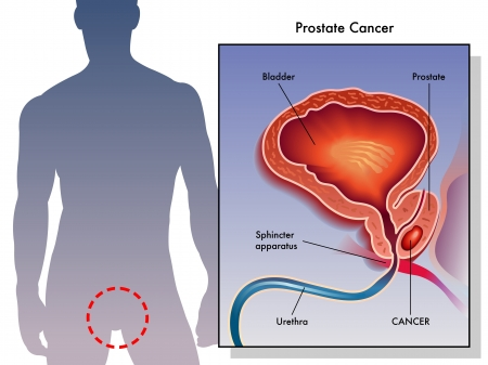 hormone  male: Prostate Cancer Illustration