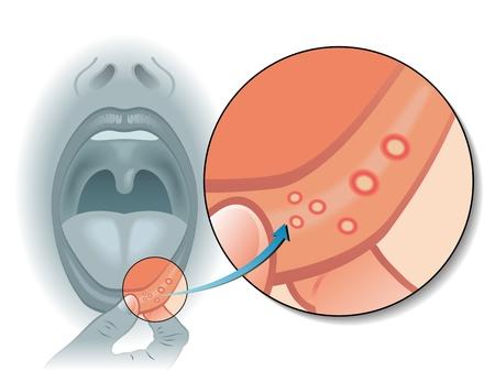 sores: ulcere della bocca Vettoriali