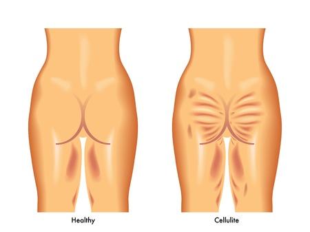 cellulit: narancsbőr Illusztráció