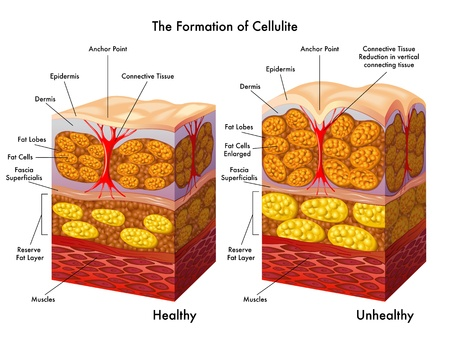 formation of cellulite Stock Illustratie